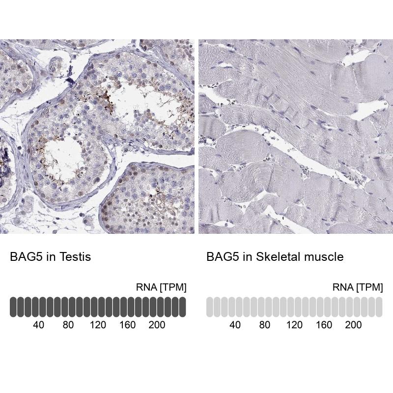 BAG5 Antibody in Relative expression