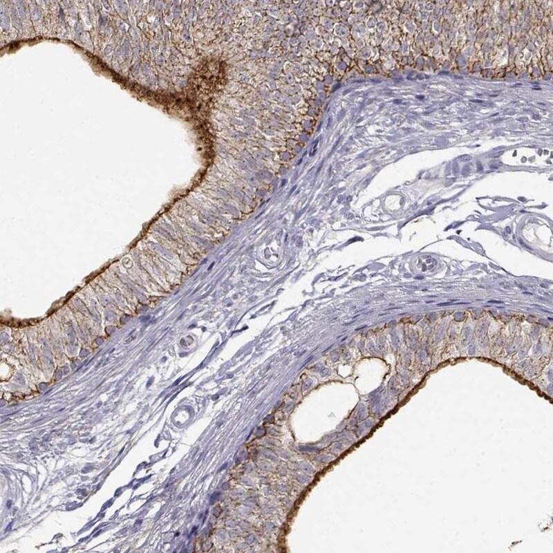 ZNF185 Antibody in Immunohistochemistry (IHC)