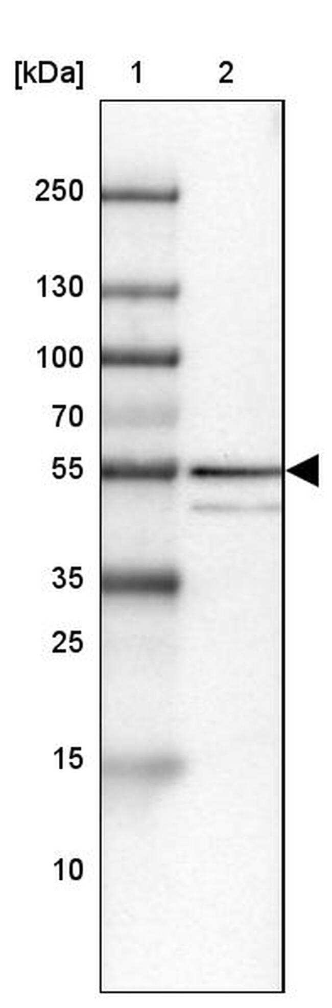 ZNF185 Antibody in Western Blot (WB)