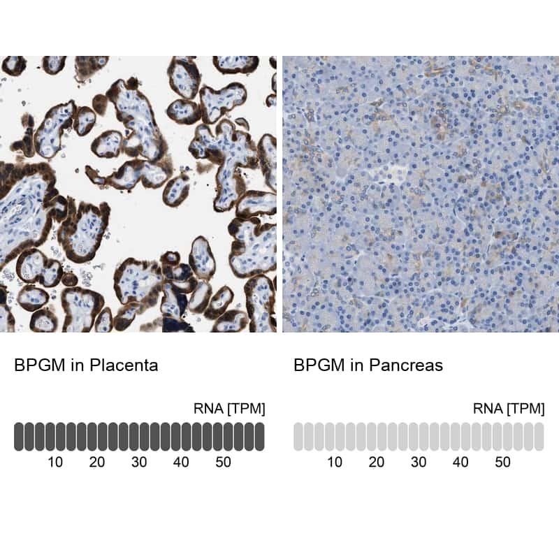 Bisphosphoglycerate mutase Antibody in Relative expression