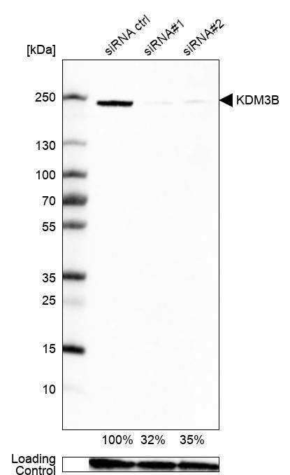 JMJD1B Antibody in KnockDown