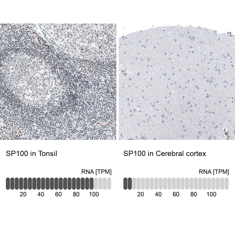 SP100 Antibody in Relative expression