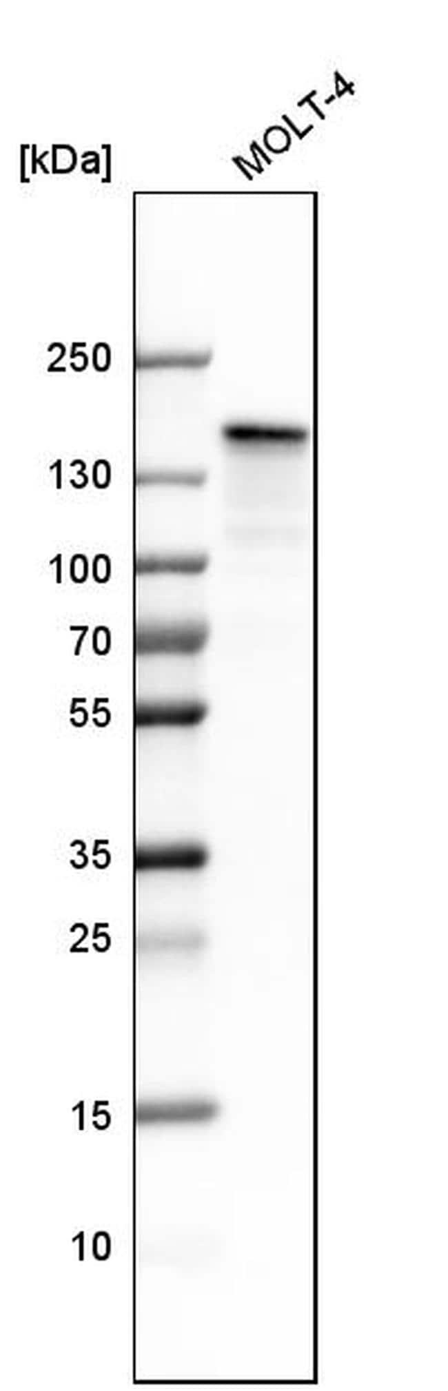 SMARCAD1 Antibody in Western Blot (WB)