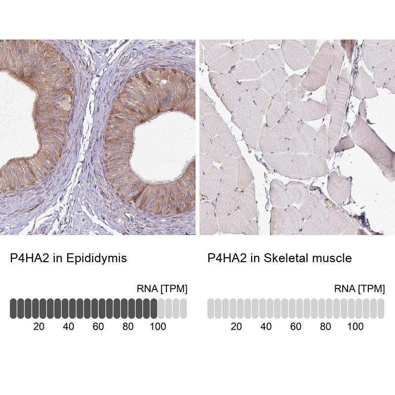 P4HA2 Antibody in Immunohistochemistry (IHC)