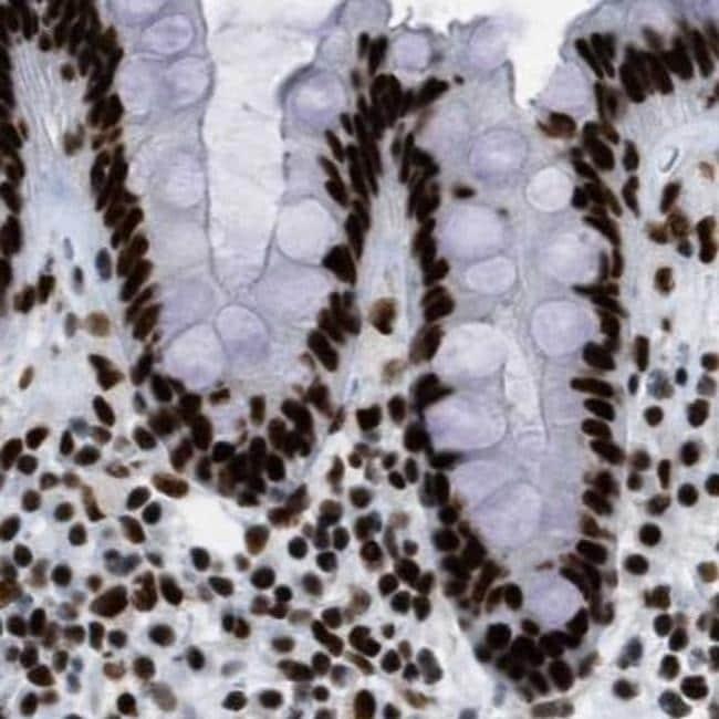 ZNF207 Antibody in Immunohistochemistry (IHC)