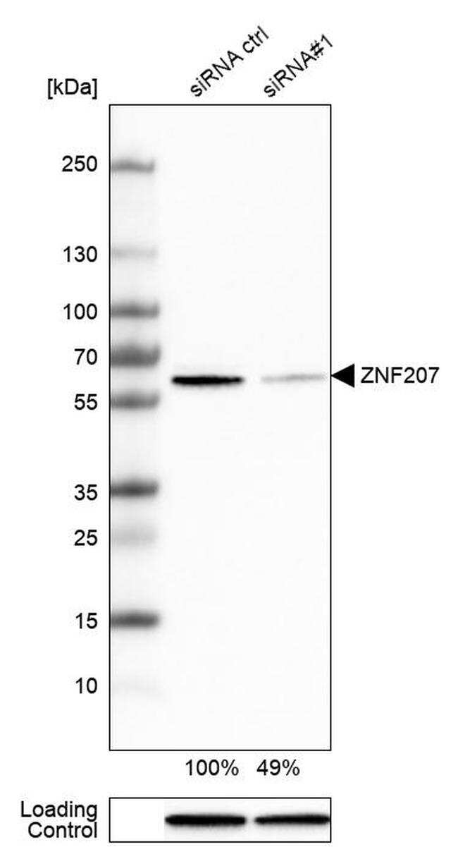 ZNF207 Antibody in Western Blot (WB)