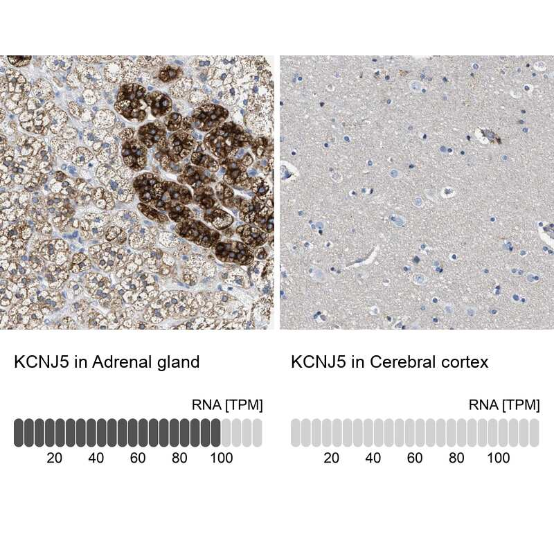Kir3.4 (KCNJ5) Antibody in Immunohistochemistry (IHC)
