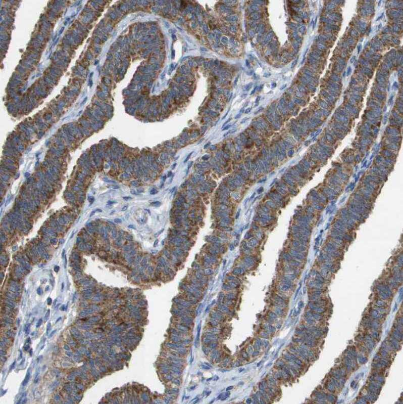 FIS1 Antibody in Immunohistochemistry (IHC)