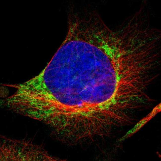 FIS1 Antibody in Immunofluorescence (IF)