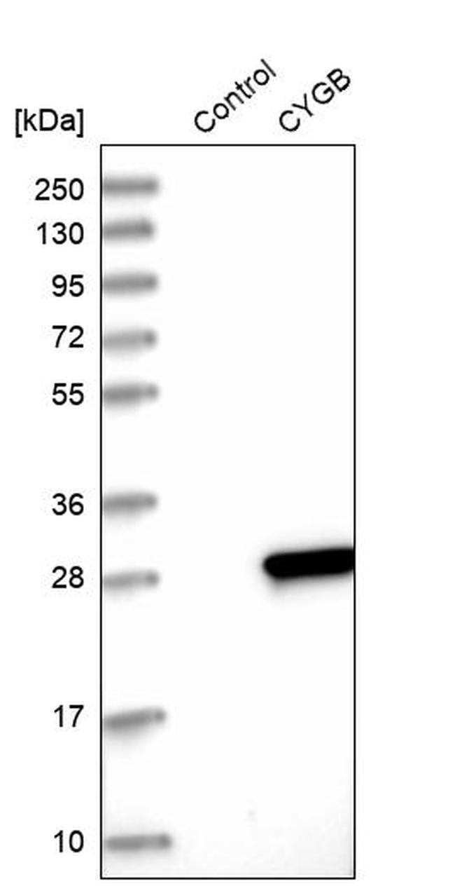 Cytoglobin Antibody in Western Blot (WB)