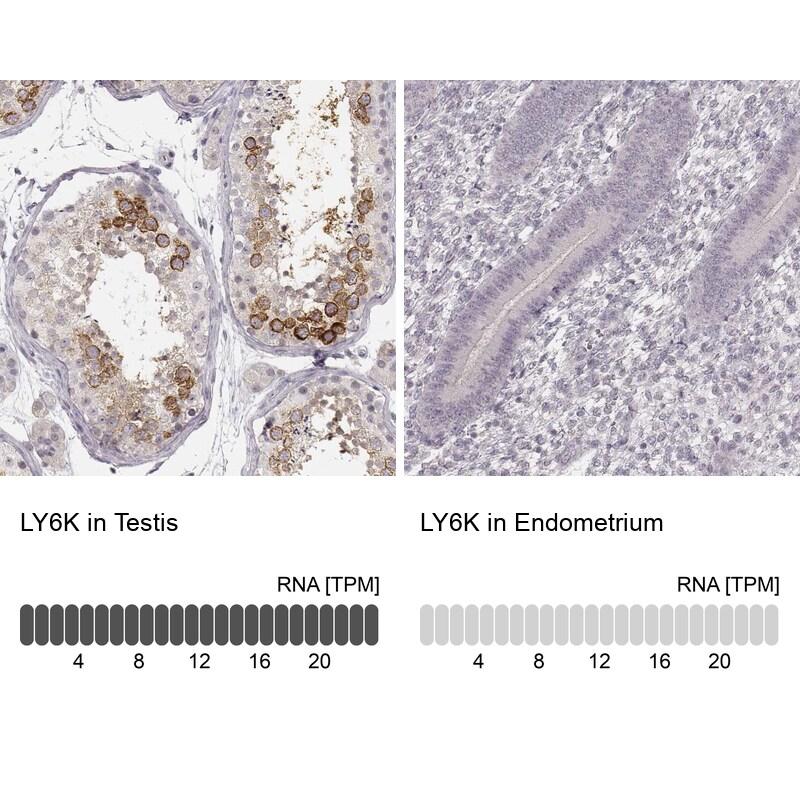 LY6K Antibody in Immunohistochemistry (IHC)