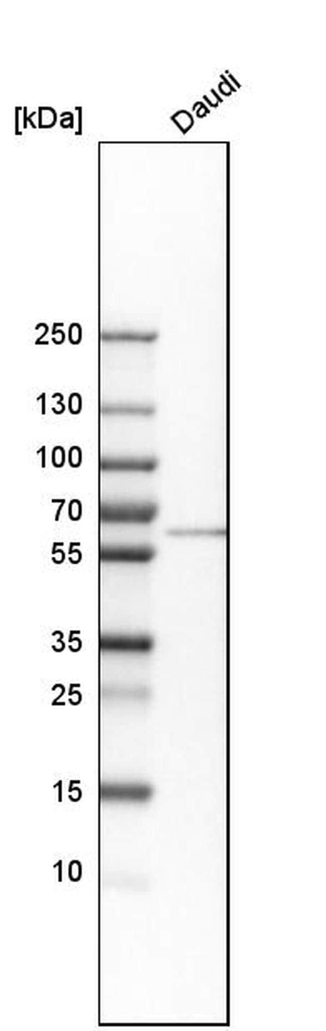 LSM14A Antibody in Western Blot (WB)