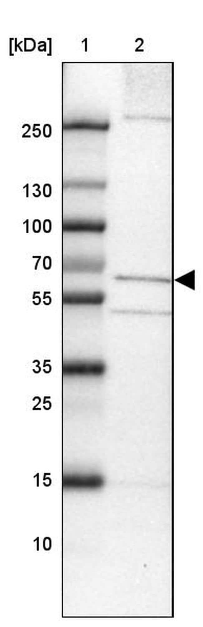TMEM87A Antibody in Western Blot (WB)