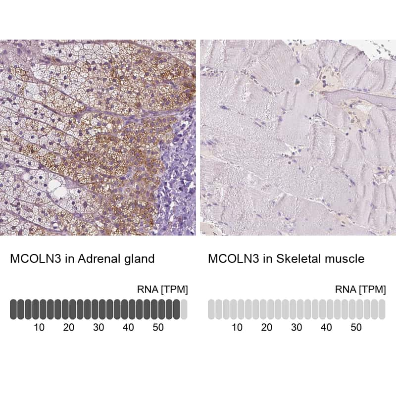TRPML3 Antibody in Relative expression