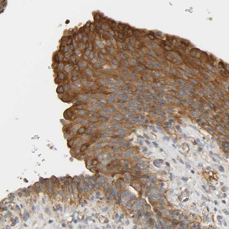 CEP57 Antibody in Immunohistochemistry (IHC)