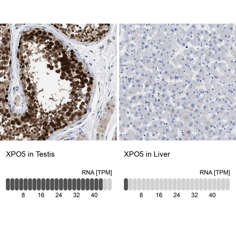 XPO5 Antibody in Immunohistochemistry (IHC)