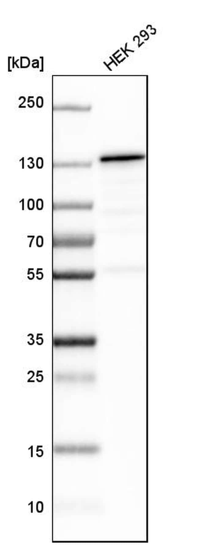 XPO5 Antibody in Western Blot (WB)