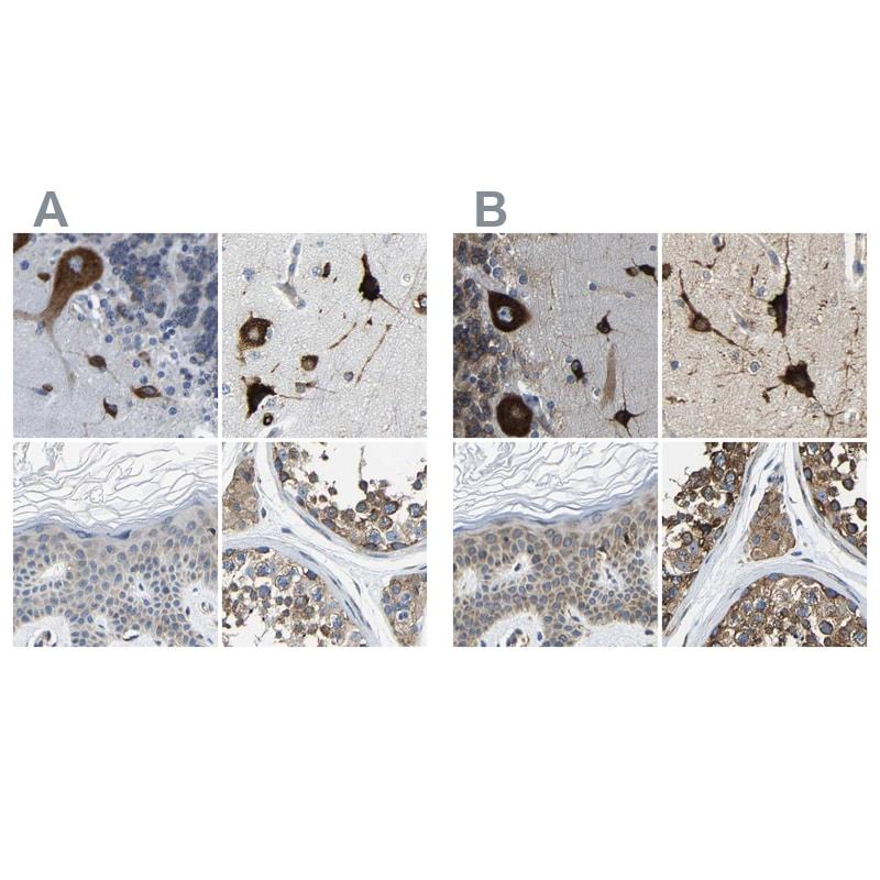 G3BP2 Antibody in Immunohistochemistry (IHC)