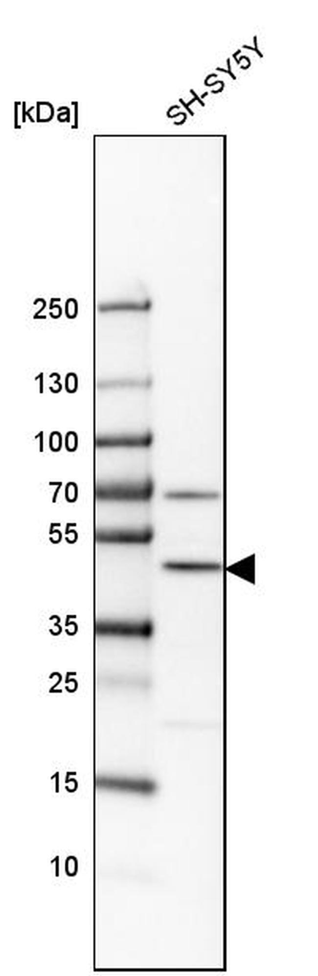 G3BP2 Antibody in Western Blot (WB)