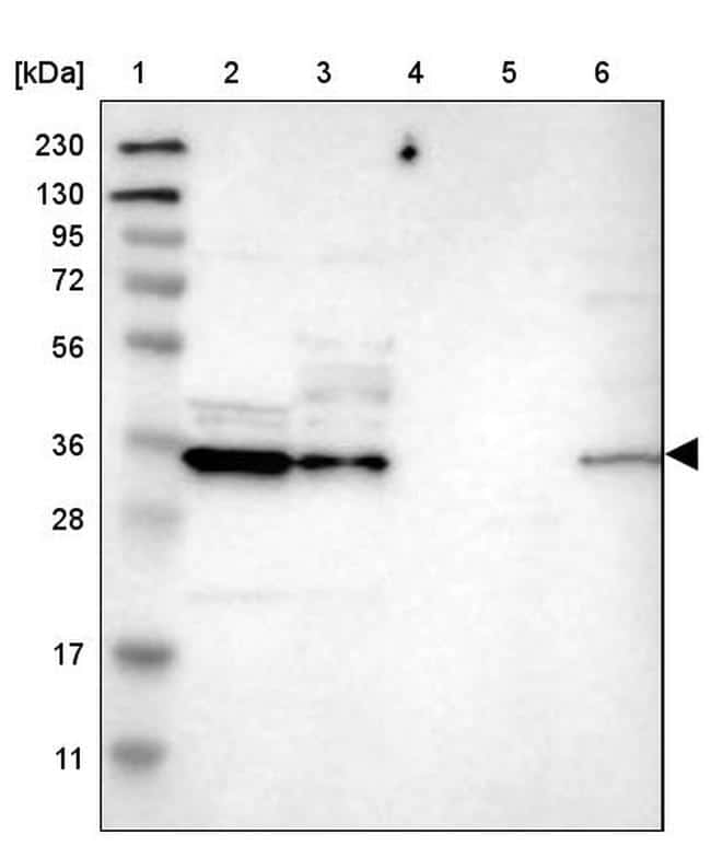 CBR3 Antibody in Western Blot (WB)