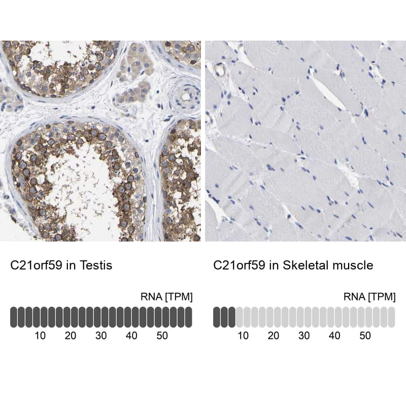 C21orf59 Antibody in Relative expression