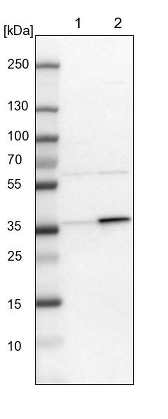 C21orf59 Antibody in Western Blot (WB)