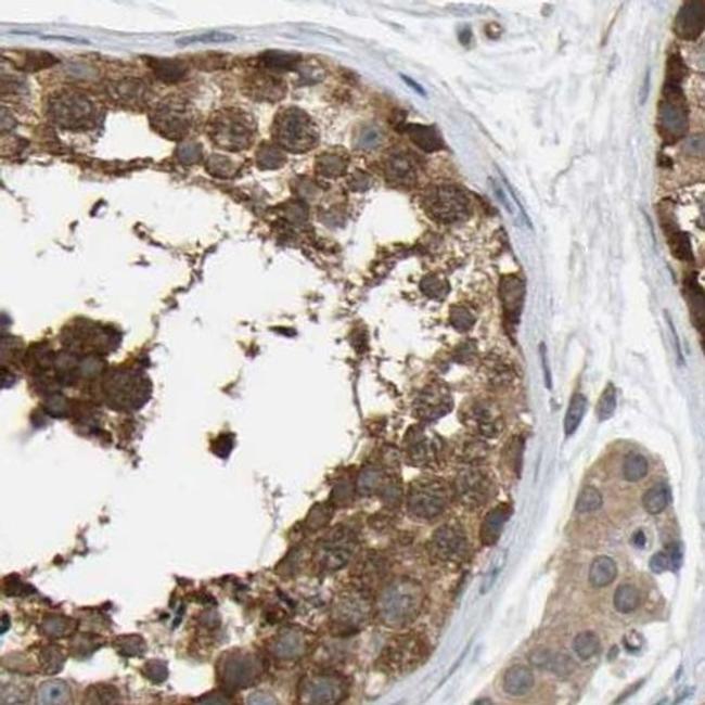 TCP-1 theta Antibody in Immunohistochemistry (IHC)