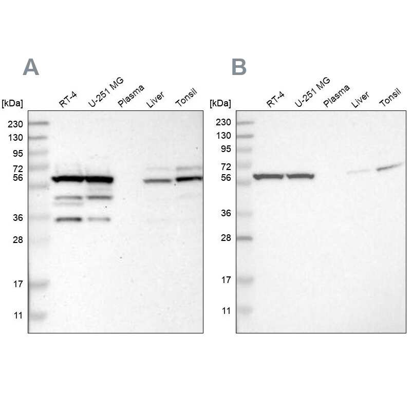 TCP-1 theta Antibody in Western Blot (WB)