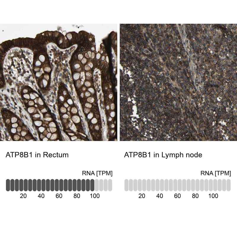ATP8B1 Antibody in Relative expression