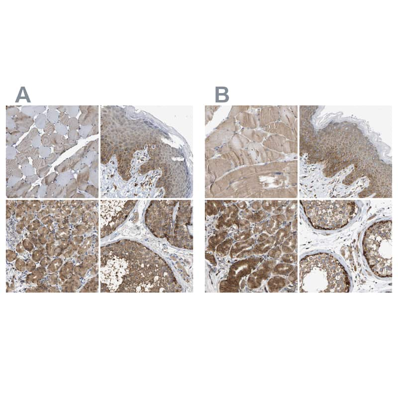 GCN1L1 Antibody in Relative expression
