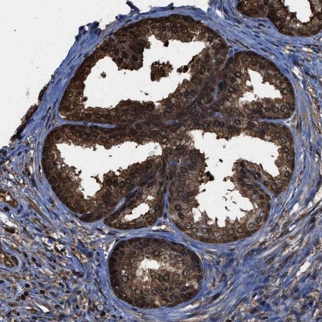 FNTA Antibody in Immunohistochemistry (IHC)