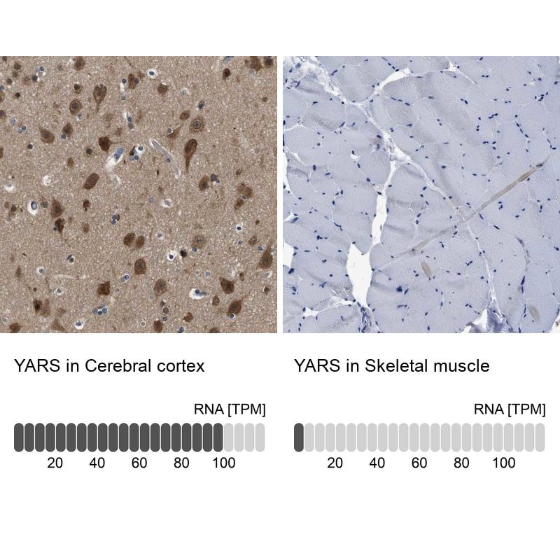 YARS Antibody in Relative expression