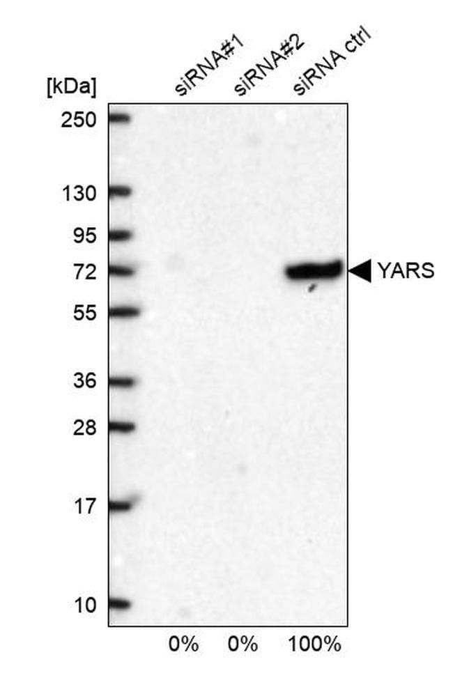 YARS Antibody in Western Blot (WB)