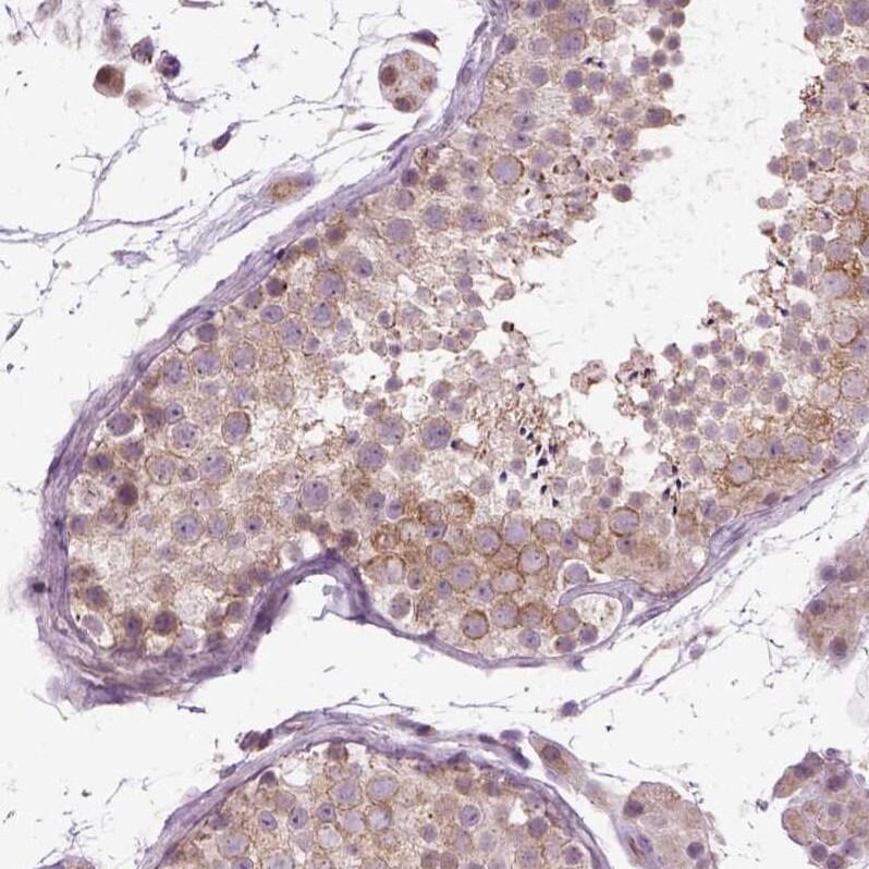 XK Antibody in Immunohistochemistry (IHC)