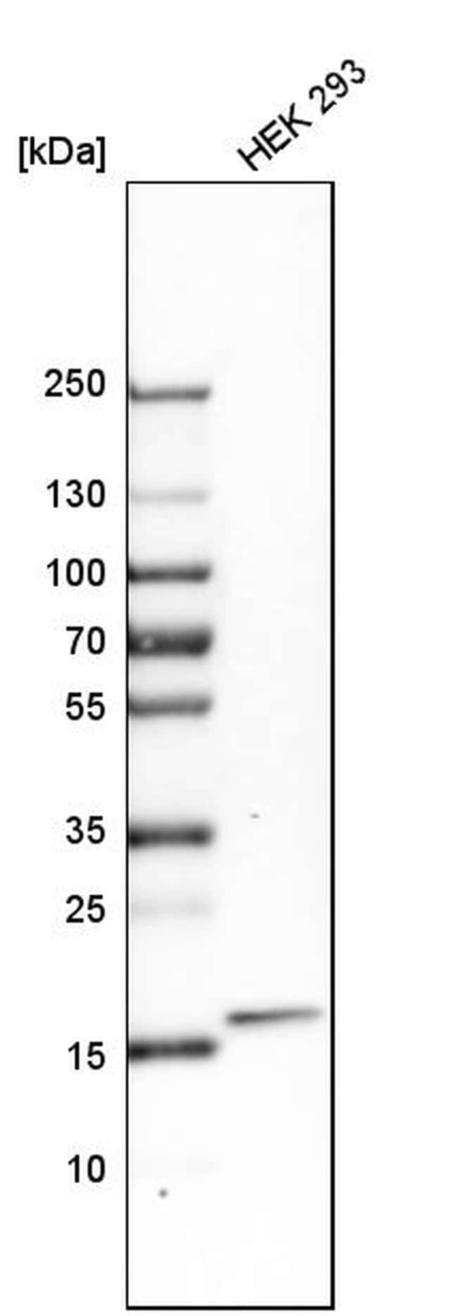 ZNHIT1 Antibody in Western Blot (WB)