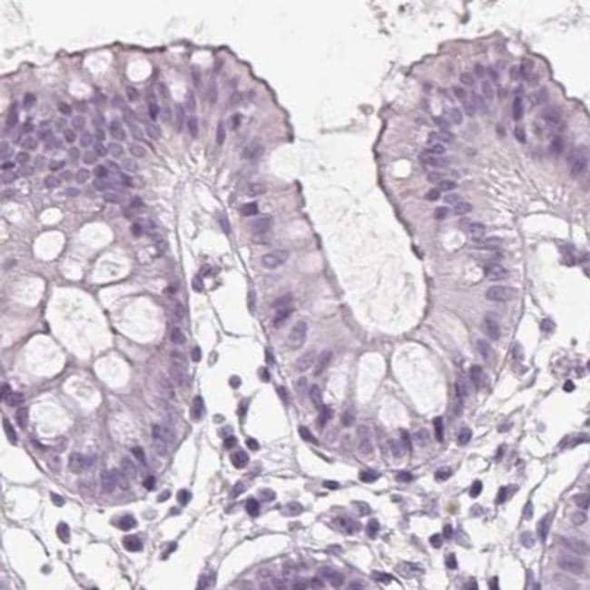 Prostein Antibody in Immunohistochemistry (IHC)