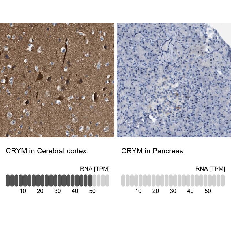 CRYM Antibody in Immunohistochemistry (IHC)