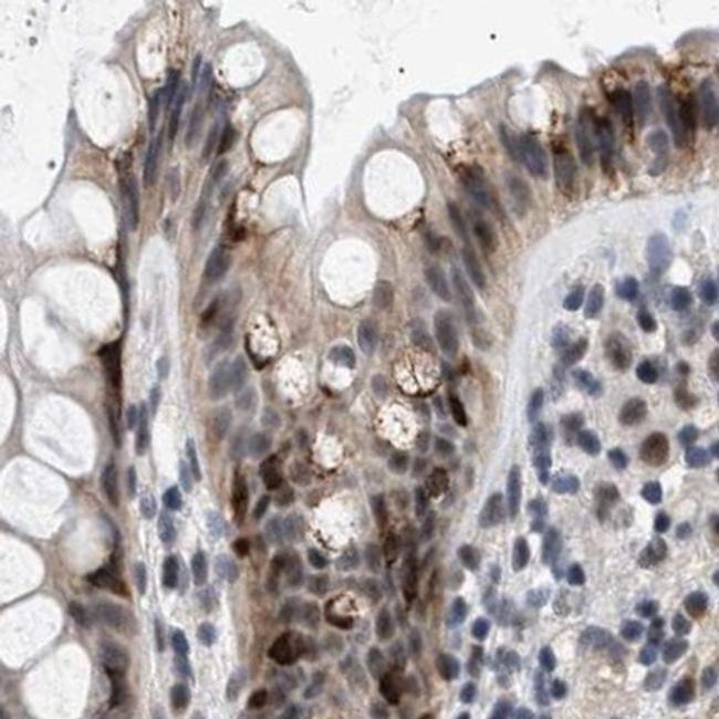 Nuclear Matrix Protein p84 Antibody in Immunohistochemistry (IHC)