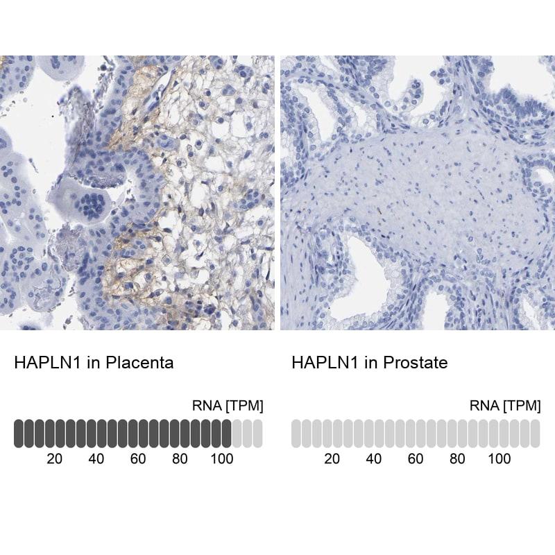 HAPLN1 Antibody in Relative expression