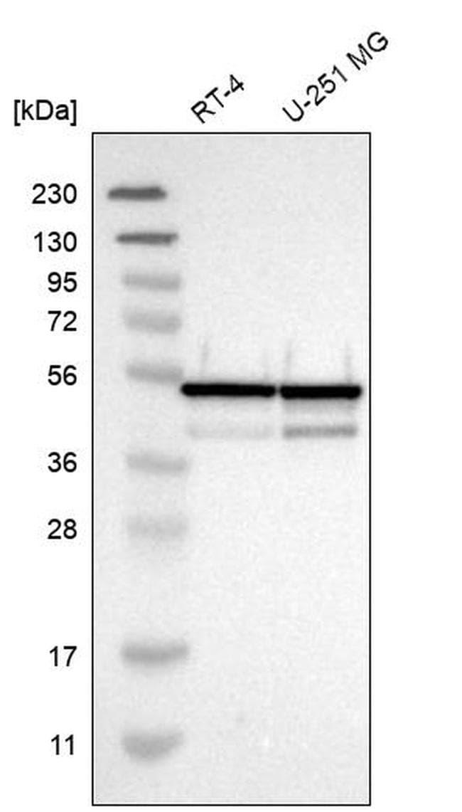 NUDCD3 Antibody in Western Blot (WB)