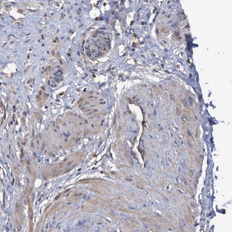 COBL Antibody in Immunohistochemistry (IHC)