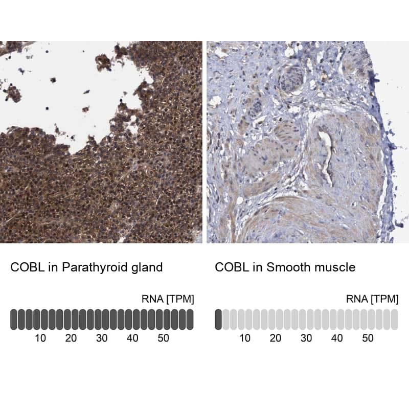 COBL Antibody in Relative expression