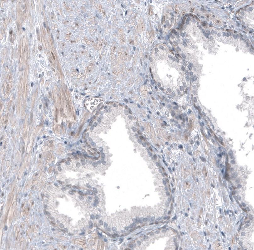 TMEM43 Antibody in Immunohistochemistry (IHC)
