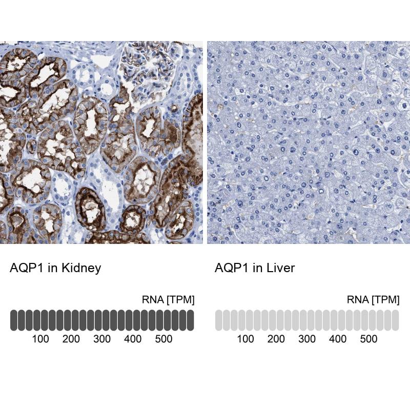 Aquaporin 1 Antibody in Relative expression