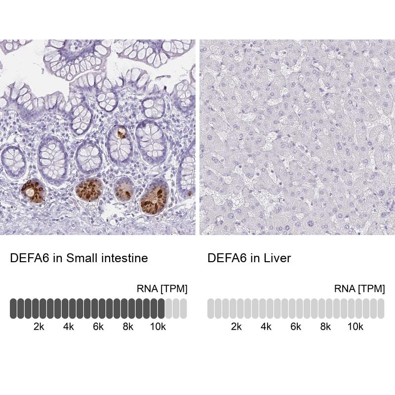 Defensin 6 Antibody in Immunohistochemistry (IHC)