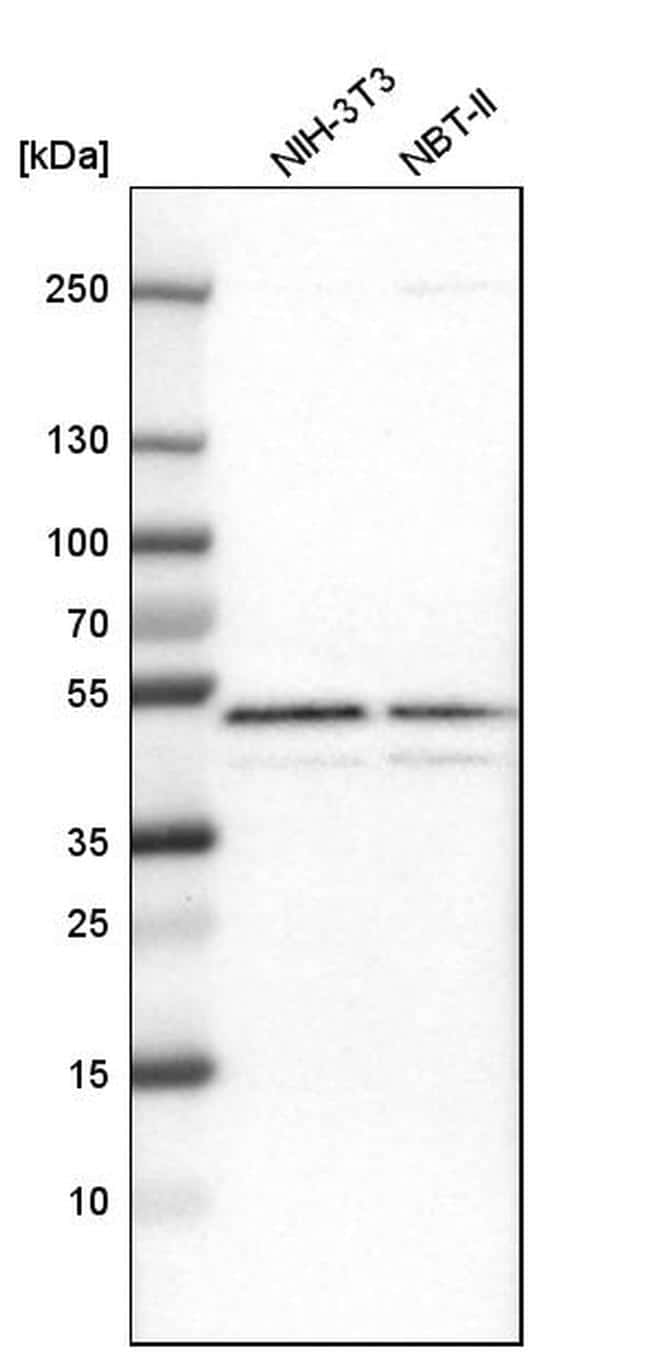 GABPB1 Antibody in Western Blot (WB)