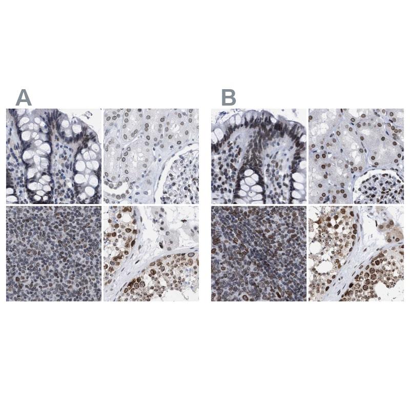 TPR Antibody in Immunohistochemistry (IHC)
