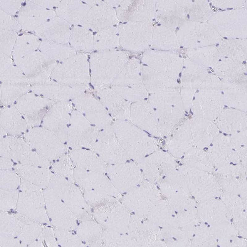 NOV Antibody in Immunohistochemistry (IHC)