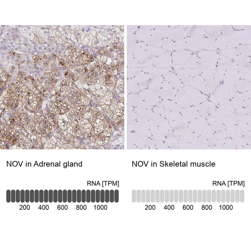 NOV Antibody in Relative expression