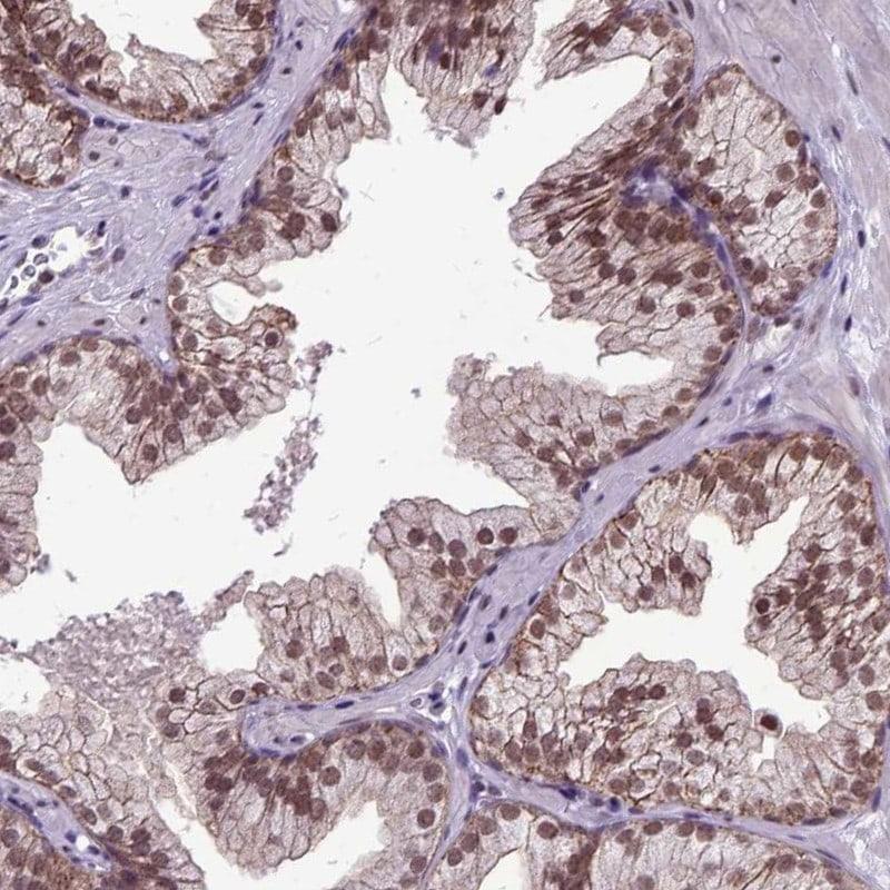 ORC5L Antibody in Immunohistochemistry (IHC)